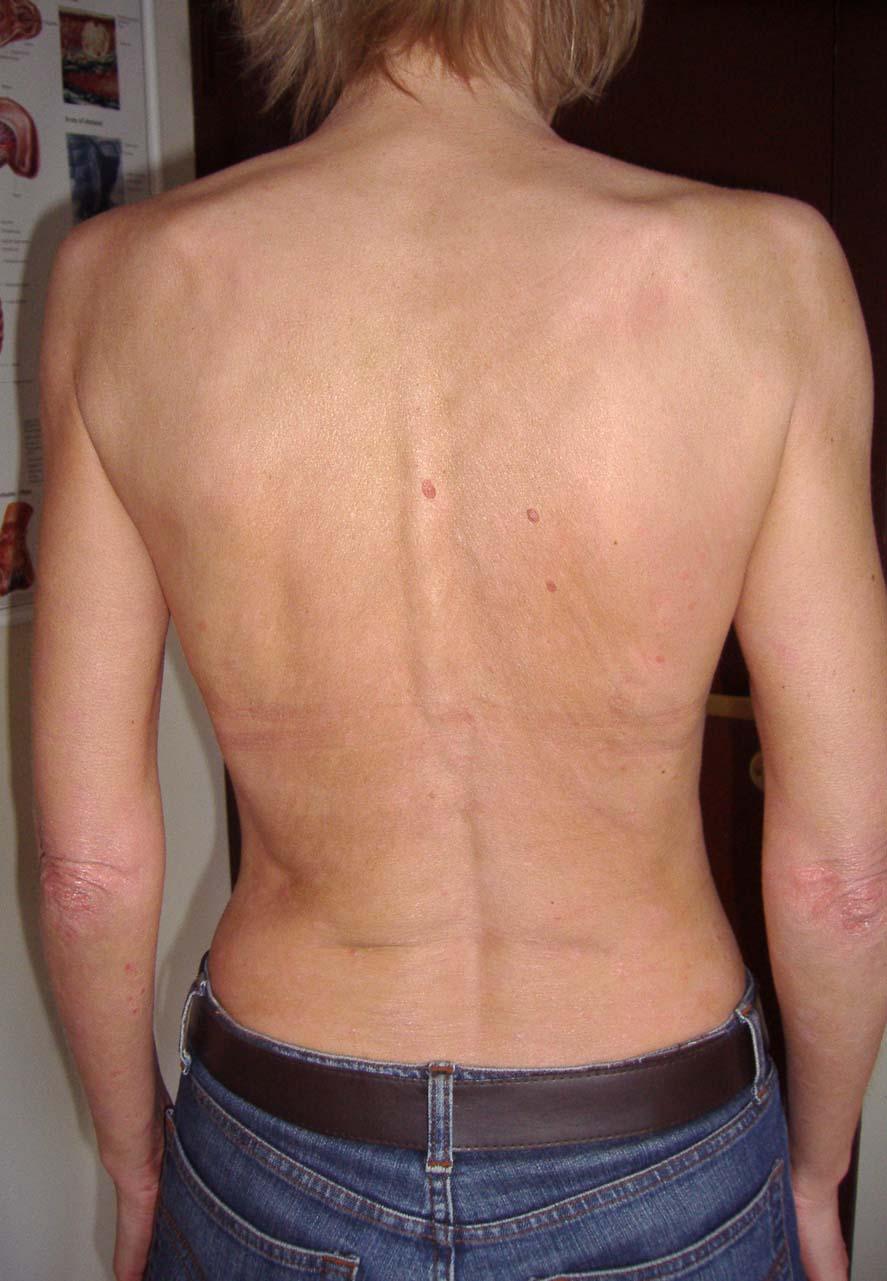 Смотреть эпиляция на заднице 24 фотография